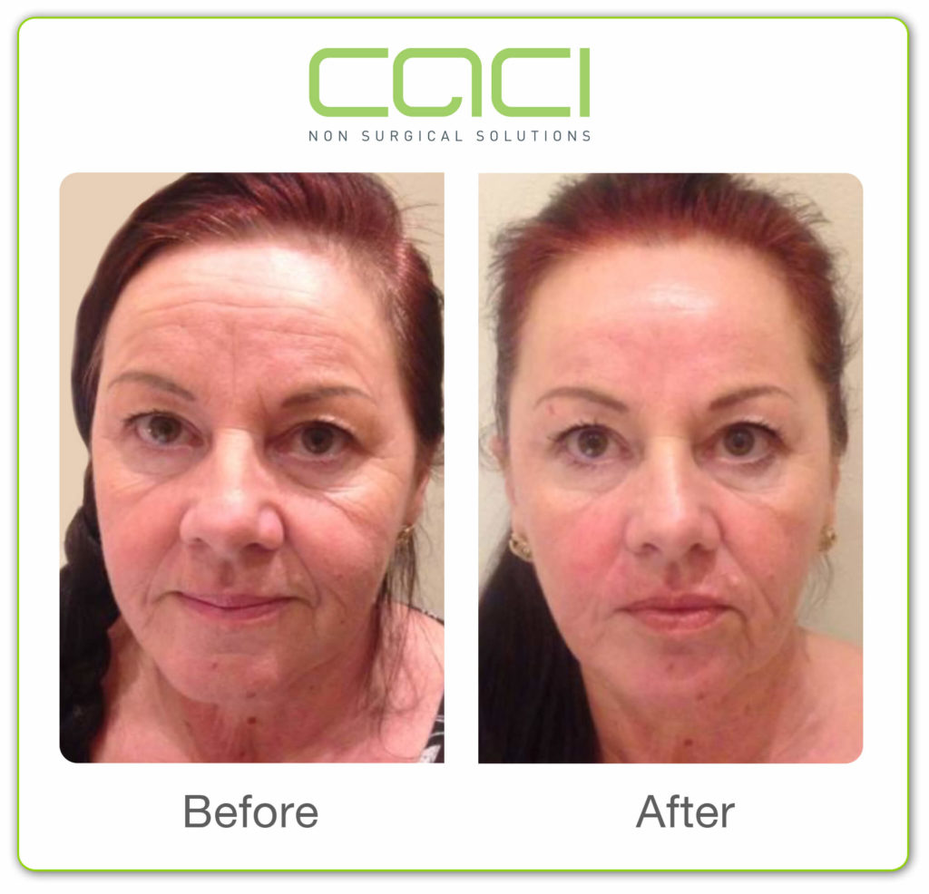 CACI-Before+After-8 copy